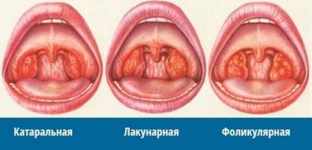 Повышенное слюноотделение (гиперсаливация) у взрослых: причины обильного слюноотделения во сне у женщин и мужчин