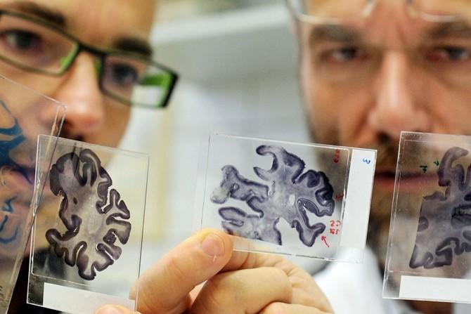 Альцгеймера болезнь причины возникновения и лечение