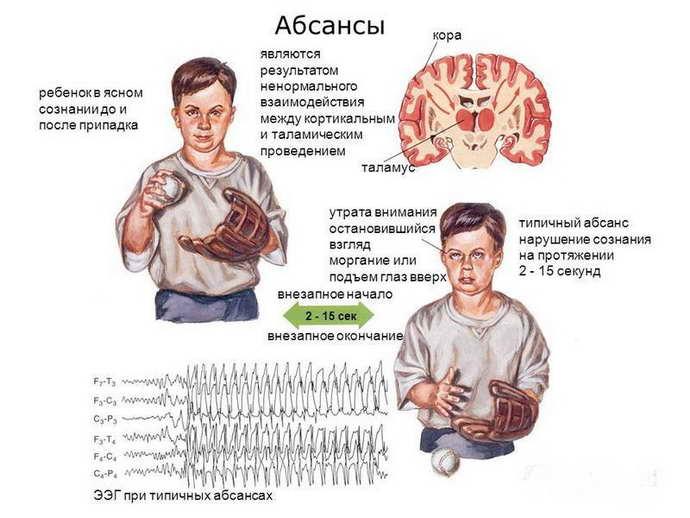 Генерализованная идиопатическая эпилепсия