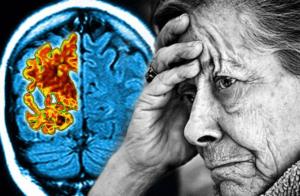 Деменция передается по наследству или нет