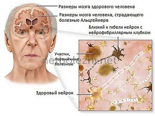 Альцгеймер сколько живут