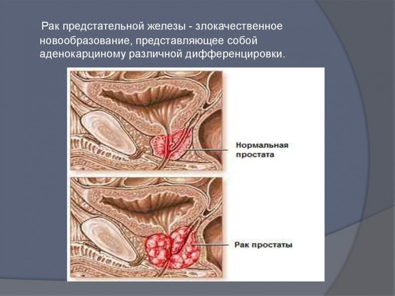 Мужские болезни половой системы: виды, симптоматика и лечение