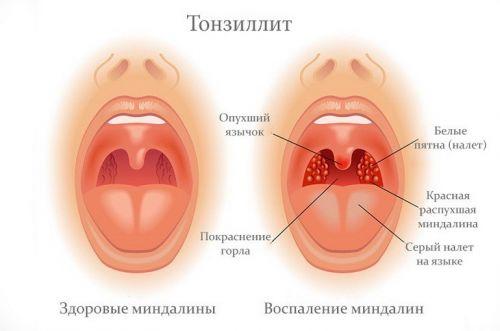 Большое слюновыделение во рту у человека причины
