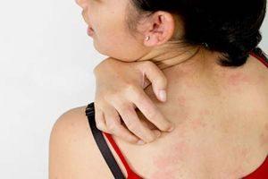 Почему ночью сильно чешется всё тело: причины и лечение ночного зуда, кожный зуд по всему телу без высыпаний