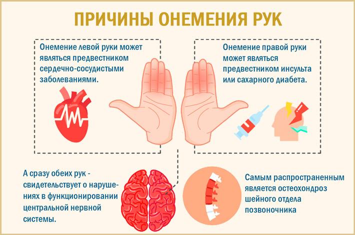 Онемение пальцев левой и правой рук ночью во время сна причины и лечение